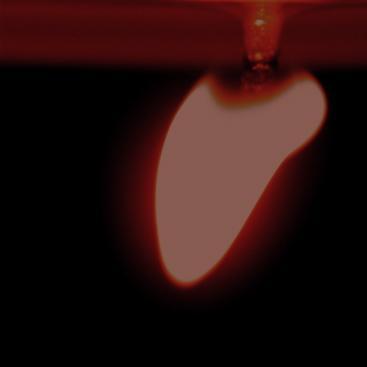 67052257-Le coeur retourné...